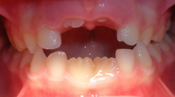 parto dental en directo juan balboa erupción 1