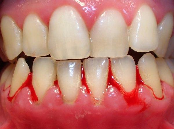Gingivitis 2