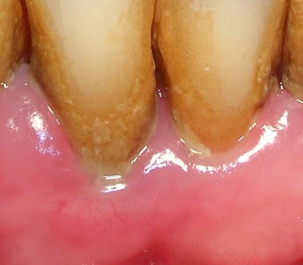 Congestión gingivitis