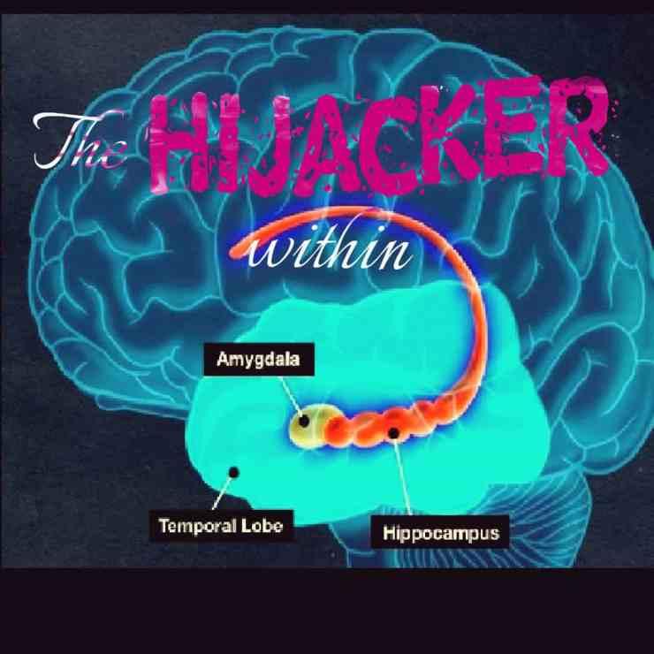 The hijacker within. Amygdala hijacking after brain injury