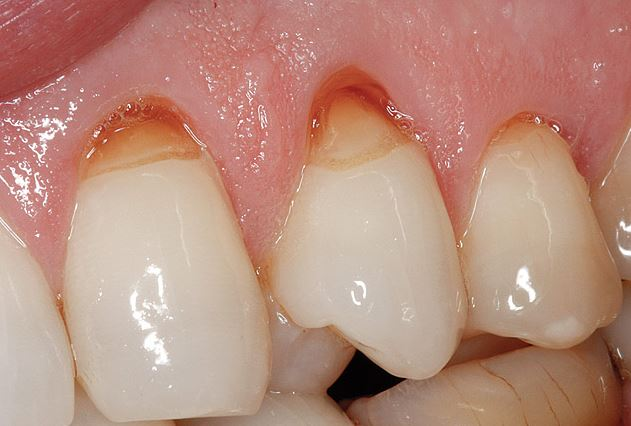 Image result for tooth abrasion