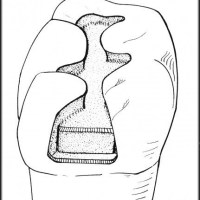 Gigi berlubang kecil, ke dokter gigi di bur menjadi besar