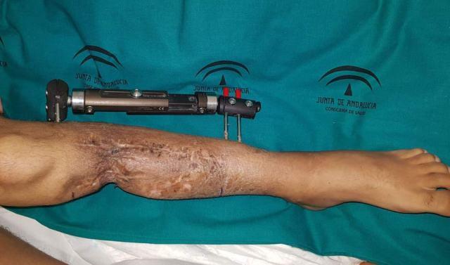 La intervención permitirá que unos meses el miembro trasplantado pueda servir de soporte para que el paciente camine.