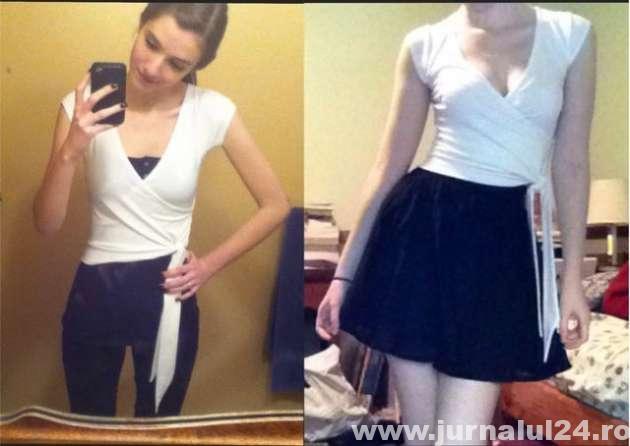 anorexia boala