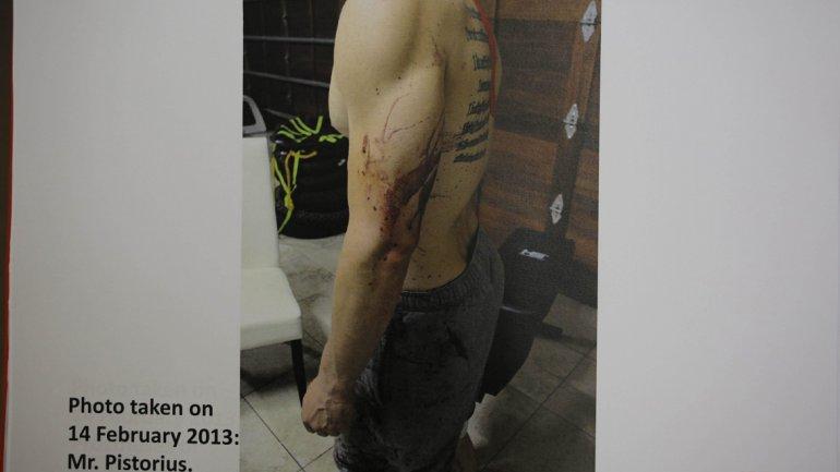 Politia i-a înregistrat trupul plin de sânge.
