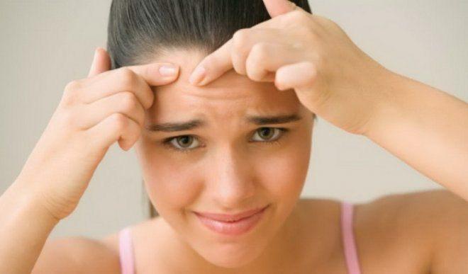 remedii acnee
