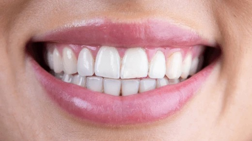 Professionally Whitened Teeth with Modern Techniques