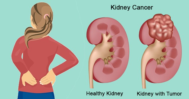 Everything to know about Kidney Cancer