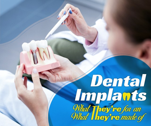 Dental Implants: What They're for and What They're Made Of