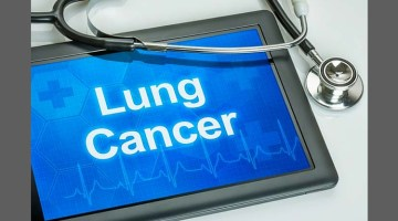 If You Read Article on Lung Cancer Read this One