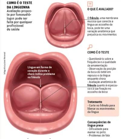 lingua presa