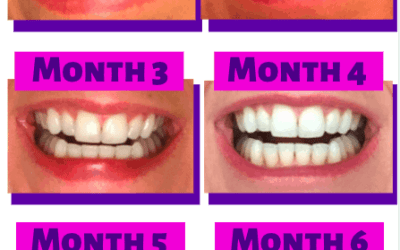 My Smile Direct Club Experience Review, Before & After Picture Results