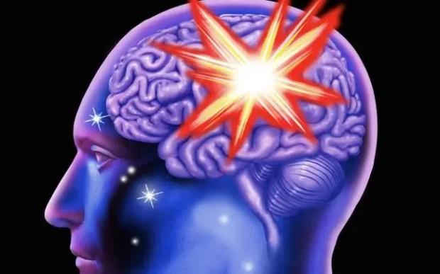 Cerebral haemorrhage