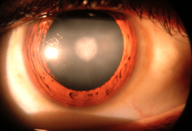 Cataracts - Symptoms and causes