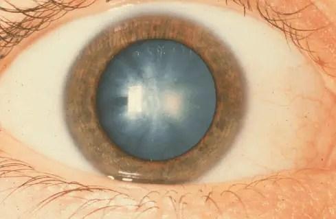 Cataracts - Symptoms
