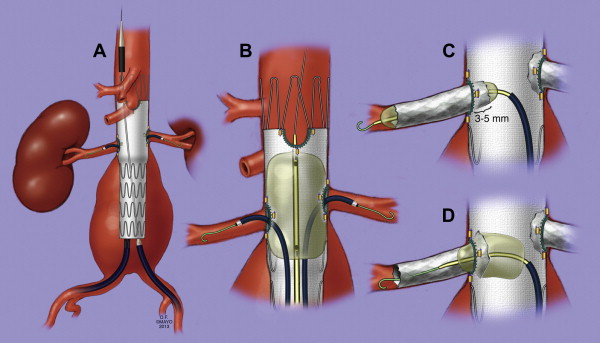 4 French Catheter