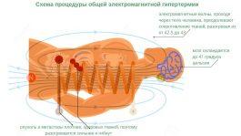 Общая гипертермия