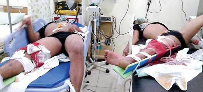 Kondisi-korban-saat-masih-menjalani-perawatan-darurat-di-RS-Al-Rohmah,-Jajag,-Rabu-dini-hari