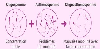 diagnostic-oligoasthenozoospermie