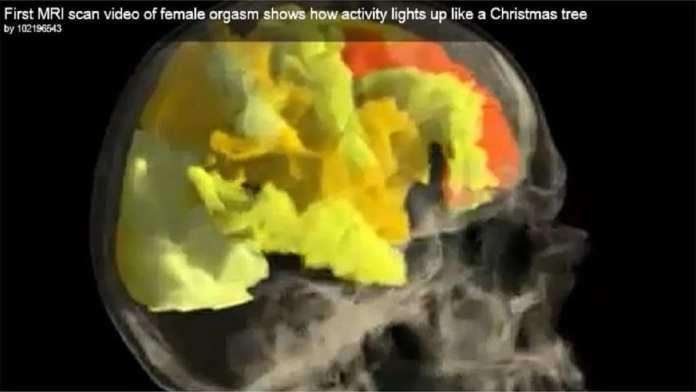 orgasme-irm / « Une activité qui s'allume comme un arbre de Noël » annonce le commentaire de la vidéo réalisée par l'équipe de l'université Rutgers. (La séquence complète est visible dans la vidéo ci-dessus). © Barry R. Komisaruk et al./YouTube