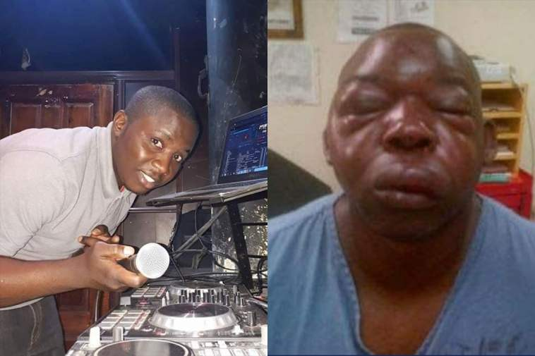 Zambian DJ Beaten To Pulp For Playing South African Music -