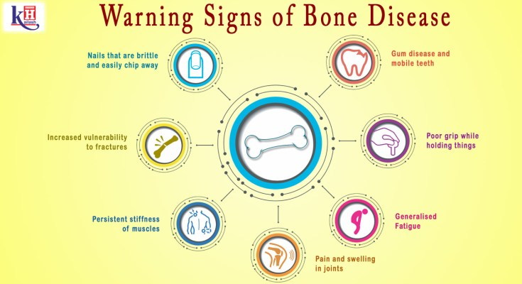7 Warning Signs of Bone Disease