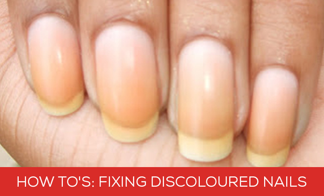How To's Fixing Discoloured Nails