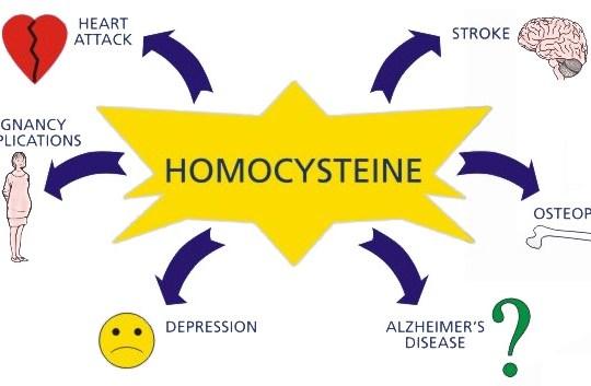Следенето на нивото на хомоцистеина в организма е от изключително значение за здравословното състояние
