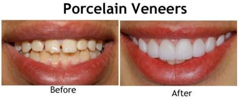 Veneer Porselen- Global Estetik Dental Care