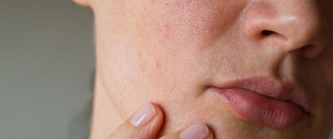 وصفات طبيعية لتخفيف التهاب البشرة في الشتاء