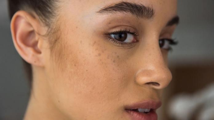 علاج البقع البنية في الوجه بالأعشاب