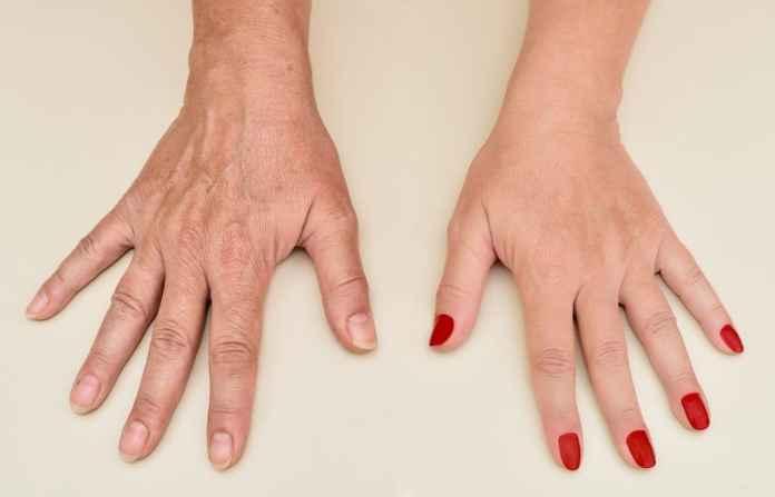 وصفات سريعة لتنعيم اليدين وشدهاوصفات سريعة لتنعيم اليدين وشدها