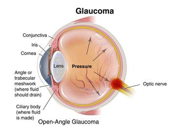 glaucoma-wheelchair-needed