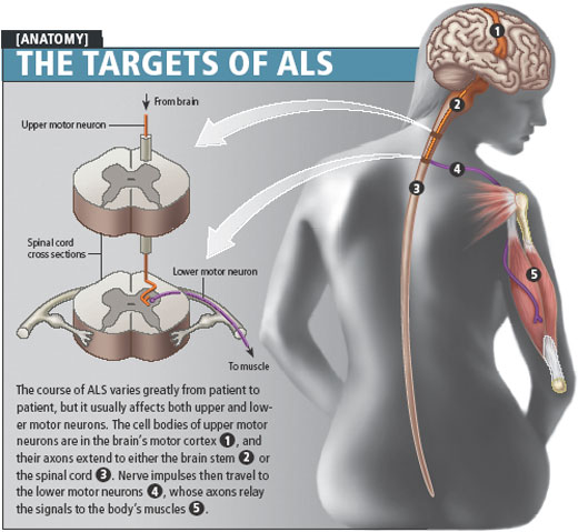 Amyotrophic-lateral-sclerosis-or-ALS-wheelchair