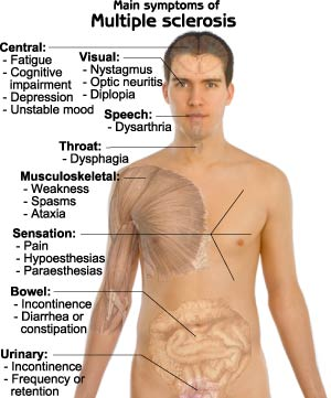 Multiple-Sclerosis-symptoms