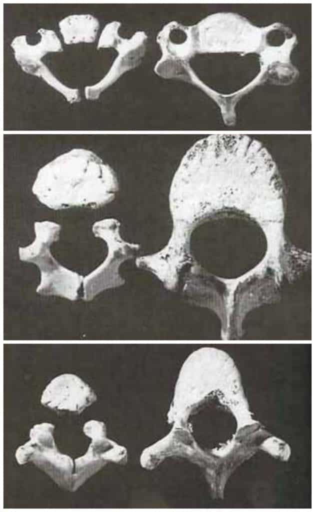 (photo credit: White, T. Human Osteology, 2000)
