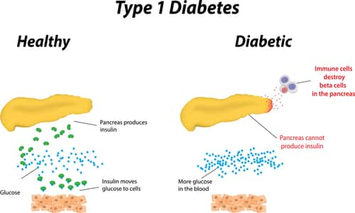 In Type 1 Diabetes, the pancreas doesn't produce enough insulin.