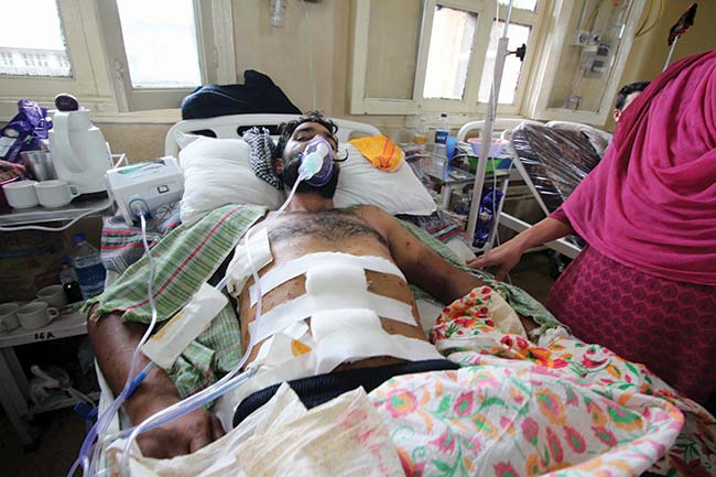 Ghulam Mohidin Bhat, 24, has over hundred pellets in his body.