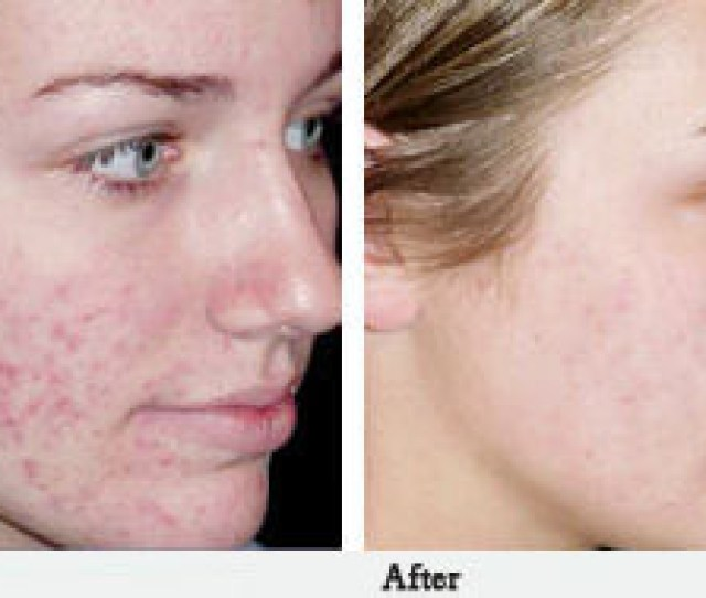 The Treatments He Uses For Acne Scar Surgery In St Petersburg Include But Are Not Limited To Punch Excision Of Deep Ice Pick Scars Deep But Graded
