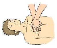 resuscytacja-v1-ułożenie-dłoni