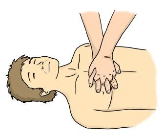 Resuscytacja - ułożenie dłoni
