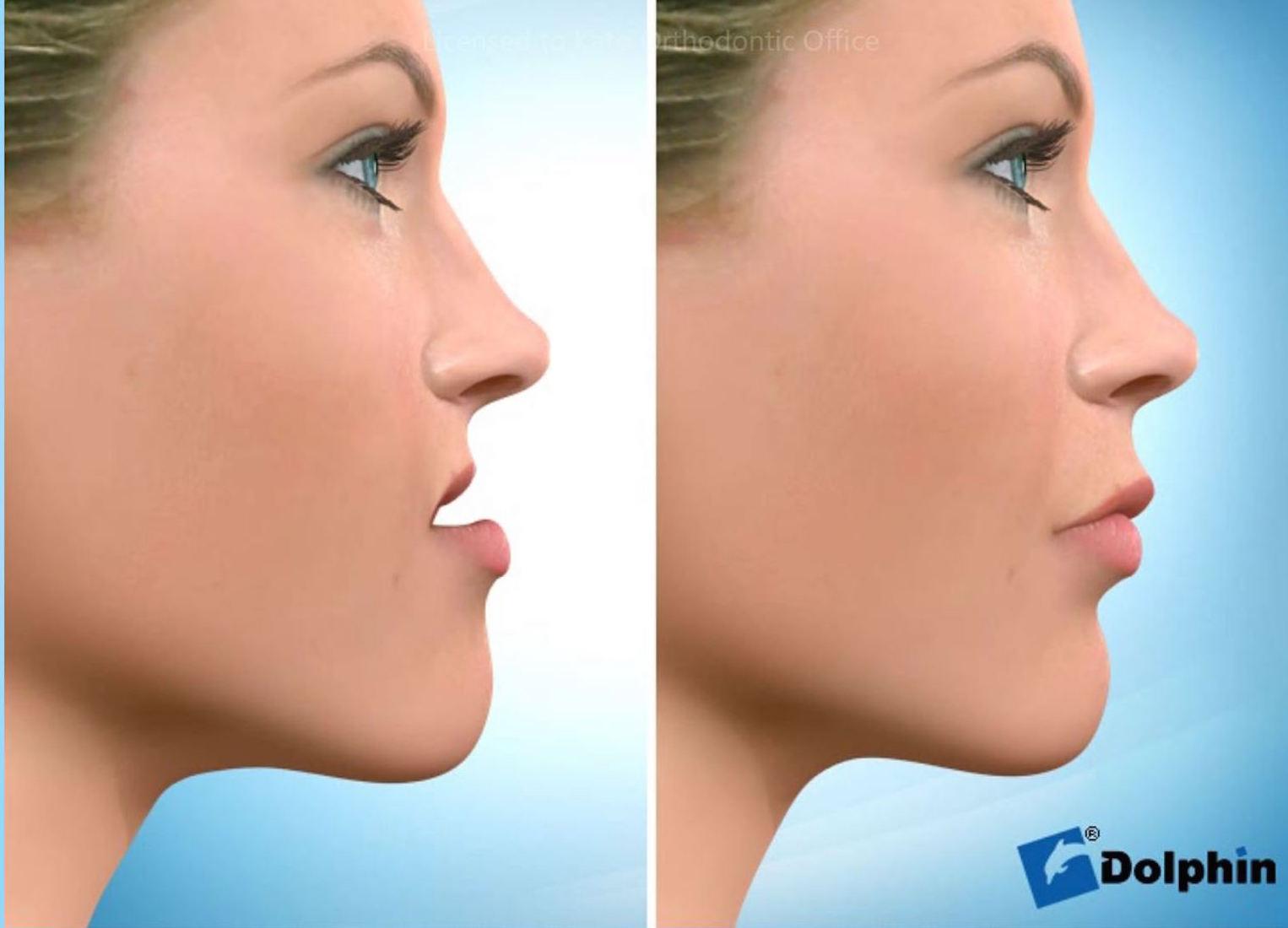 埋伏歯をともなう顎変形癥(下顎前突癥)   カトウ矯正歯科