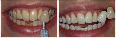 before and after whitening sunshine coast dentist