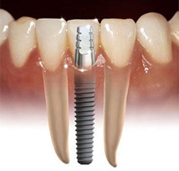 Dental Implants Kawana Dentist