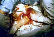 Photo of Svjetski dan srca obilježen u Banjaluci: Kardiovaskularne bolesti ubica broj jedan