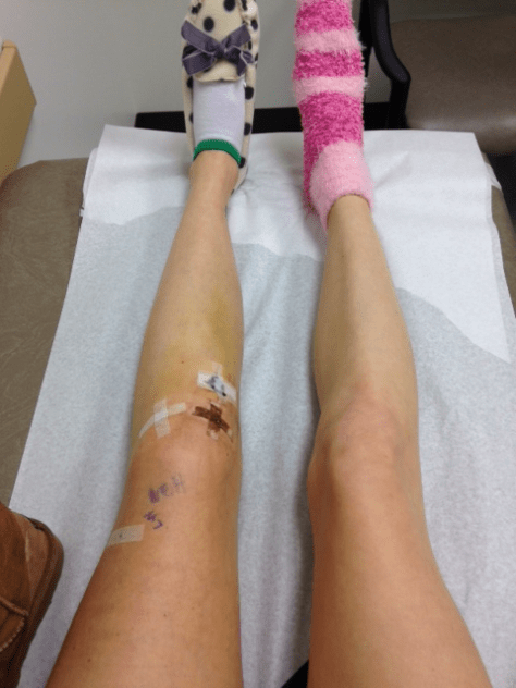 acl-post-surgery-5-days_3