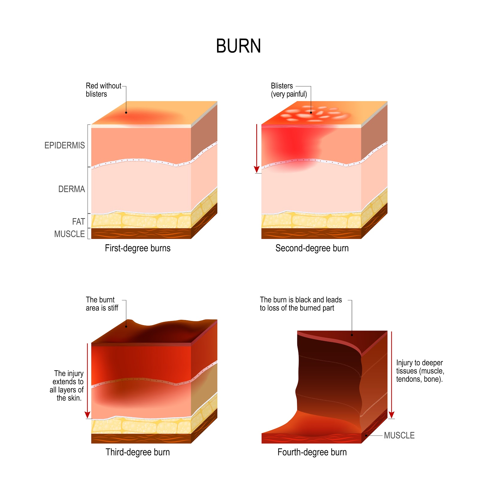 Burned In An Accident Call A New Jersey Burn Injury Attorney