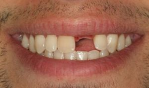 Missing tooth before getting Implant crown