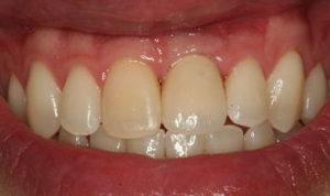 Gum tissue around implant