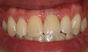 Gum tissue around implant